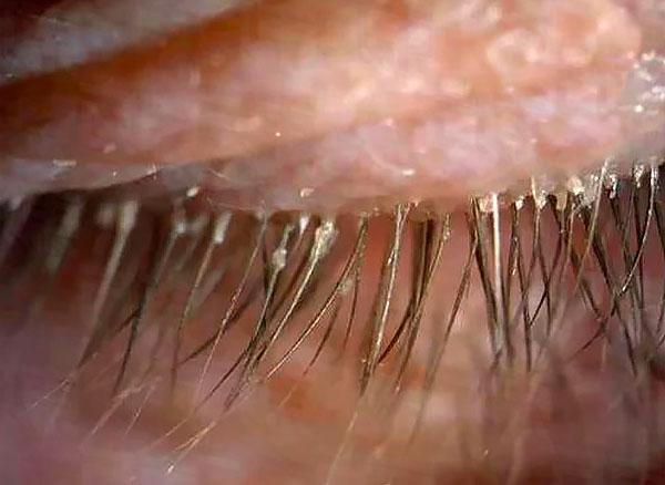 Характерный симптом демодекоза - выделения на ресницах.