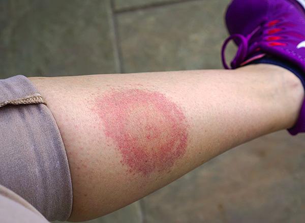 Мигрирующая (кольцевая) эритема - характерный признак болезни Лайма.