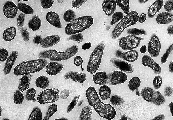 Возбудитель Ку-лихорадки (Coxiella burnetii)