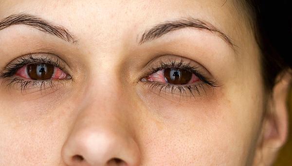 Риноконъюнктивит может возникать на фоне наличия в доме пылевых клещей.