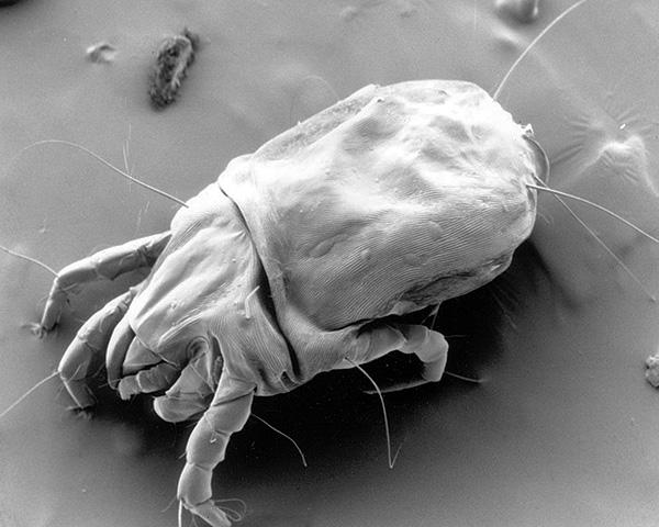 Dermatophagoides pteronyssinus под электронным микроскопом