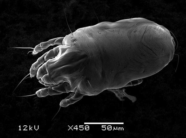 А эта фотография сделана с использованием сканирующего электронного микроскопа.