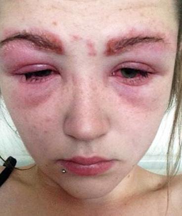 Аллергическая реакция связана с избыточным ответом иммунной системы на действие аллергена.