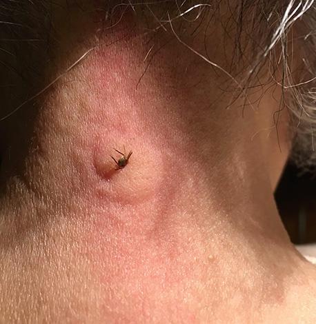 В ряде случаев на укус клеща развивается выраженная аллергическая реакция.