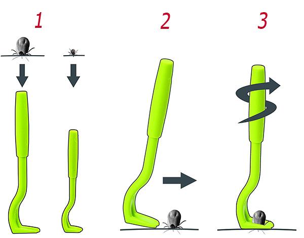 Схематично показаны шаги по выкручиванию клеща из кожи.