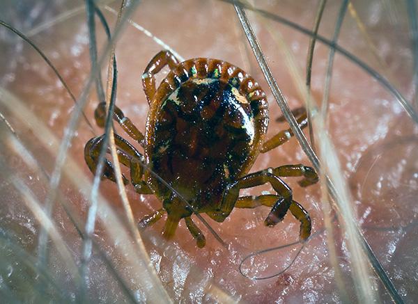 Во многих регионах России при укусах клещей человек может заражаться смертельно опасными инфекциями...