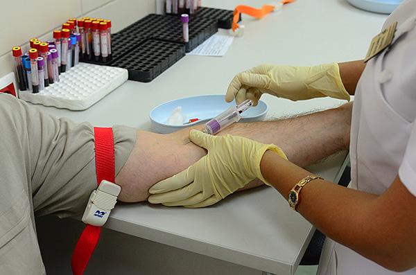 При подозрении на клещевой энцефалит производится общий анализ крови.