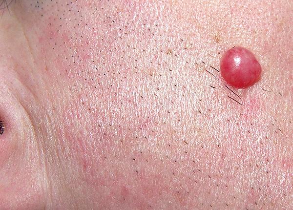 Доброкачественная лимфоцитома кожи - признак болезни Лайма