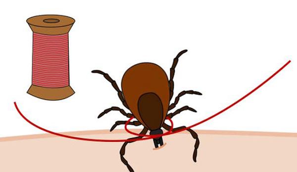 Выясняем, насколько легко можно вытащить клеща с помощью нитки и как это сделать правильно...