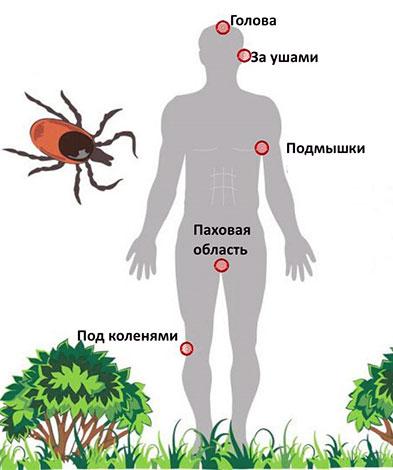 Места наиболее частых укусов клещей на теле человека