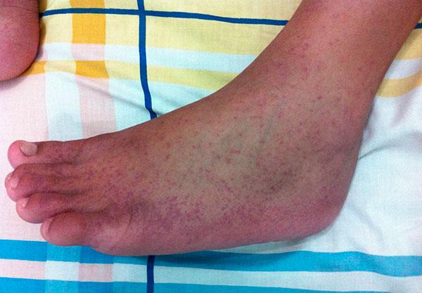 Кровоизлияния на коже от геморрагической лихорадки