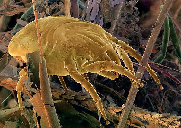 Пылевой клещ при многократном увеличении