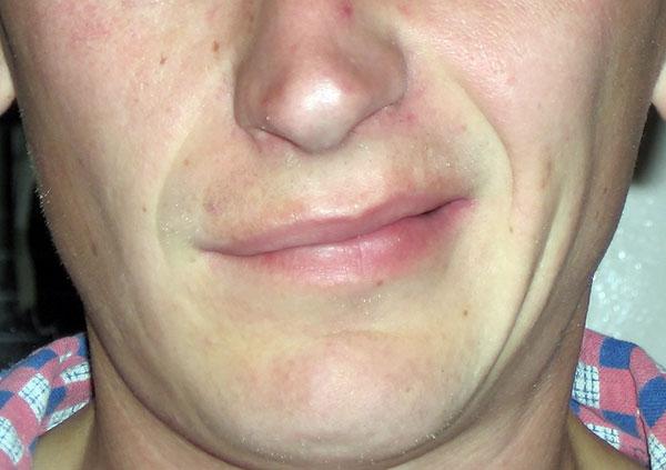 Неврит лицевого нерва после боррелиоза